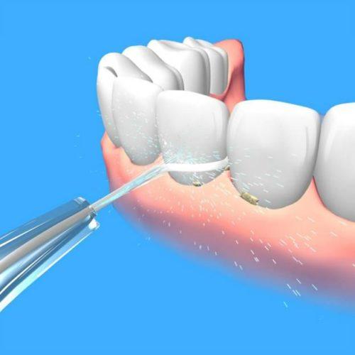 Pression de l'eau sur les dents