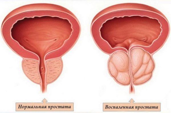 Inflammation de la prostate