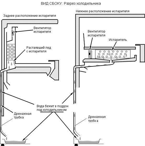 Variantes de l'emplacement du tube de drainage