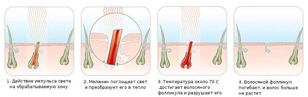 Fotoepilator prensibi