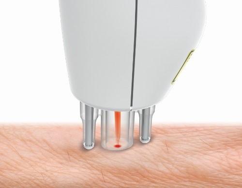 Le travail de l'épilateur laser